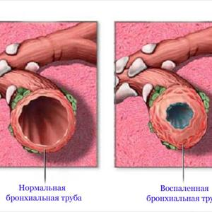 Natural Cure For Lung Infection - Ways To Cure Bronchitis