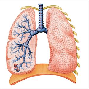 Otc Bronchial Medications - The Relationship Between Bronchial Asthma Bronchitis And Acid Reflux