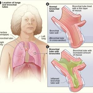 Mucus In Chest - What You Must Know About The Advantages Of Slimmer Spa